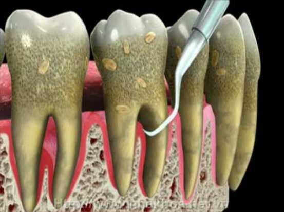 Đánh răng bị chảy máu