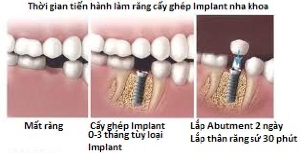 mất răng hàm có nên làm cầu răng