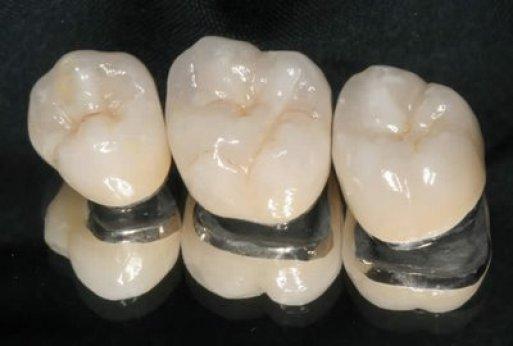 răng sứ các loại