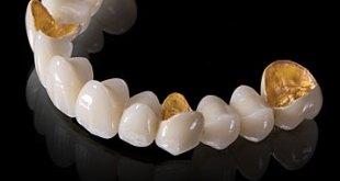 Làm răng sứ thẩm mỹ giá bao nhiêu, nha khoa nào tốt ở HN ?