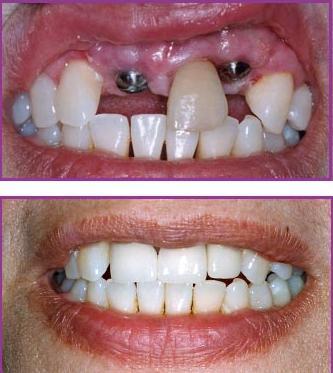 cấy ghép implant cho 2 răng cửa