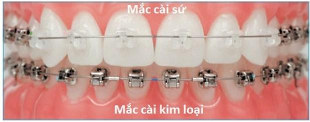 clear_braces2-asa