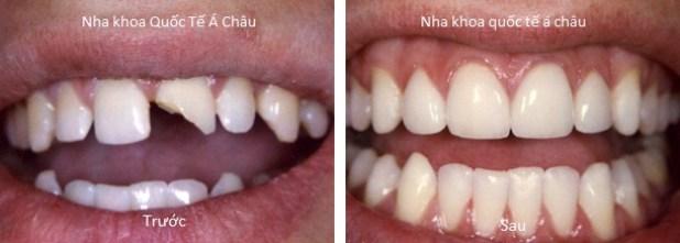 nhakhoaquocteachauvorang crowns 1 both - Bọc răng sứ giá bao nhiêu tiền