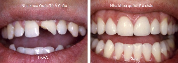 nhakhoaquocteachauvorang-crowns-1-both