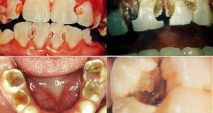 Sâu răng và cách điều trị hiệu quả