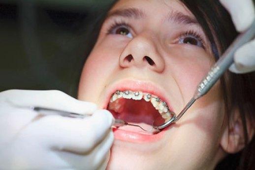 niềng răng hô hết bao nhiêu tiền