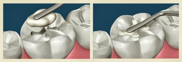 Giá trám răng bị mẻ hết bao nhiêu tiền?