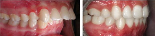 Bật-mí-cách-tự-chữa-răng-vẩu-tại-nhà-a-chau