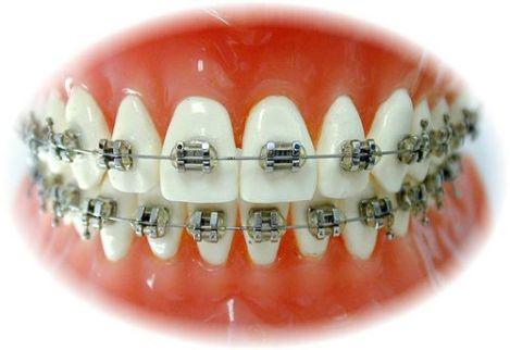 Vẩu 2 răng cửa nên niềng răng hay bọc răng sứ thì tốt nhất? 1