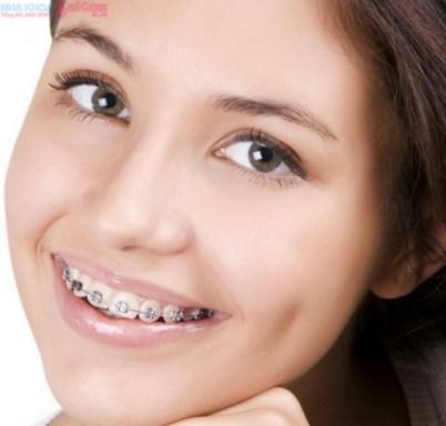 chi phí chữa răng vẩu