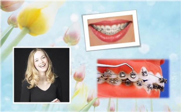 phương pháp niềng răng hiệu quả