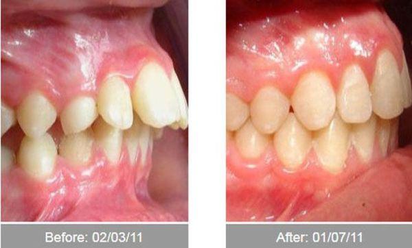 răng-vậuhg