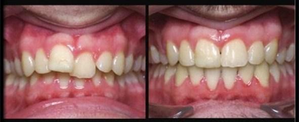 Bọc răng sứ chỉnh răng mọc lệch