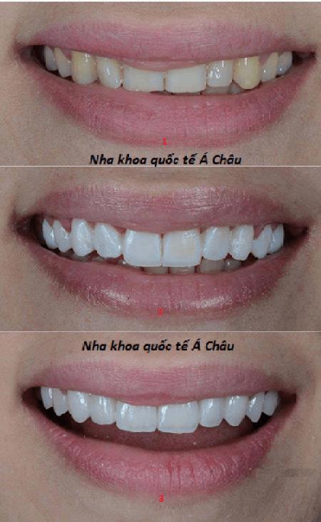 cercon răng tạm thời