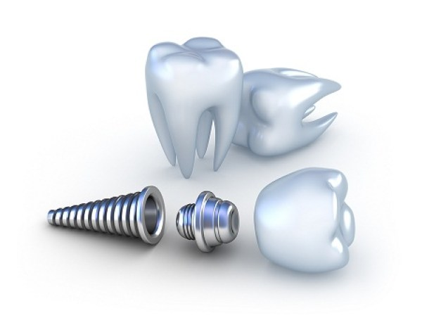 implant-tân-tiến