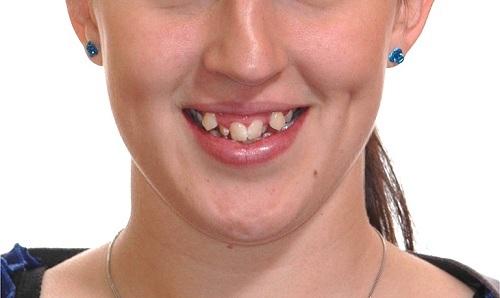 răng mọc lộn xộn
