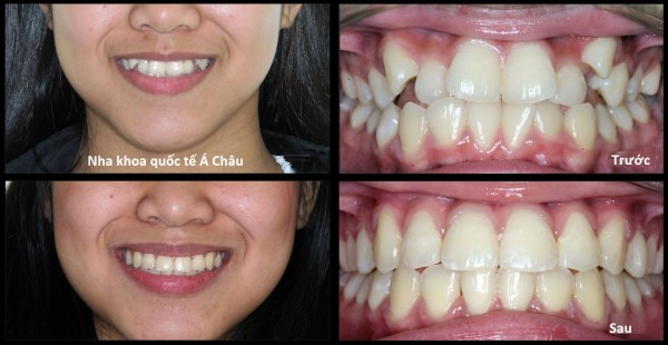 orthodontic-patient-93-before-and-after
