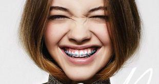 Niềng răng clear aligner giá bao nhiêu, vì sao lại có giá rẻ nhất?