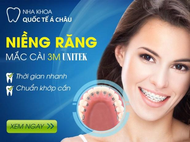 niềng răng 3M