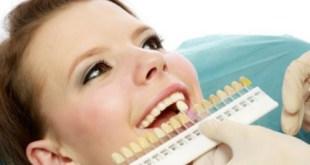 Bảng giá bọc răng sứ thông tin bỏ túi bạn nên biết