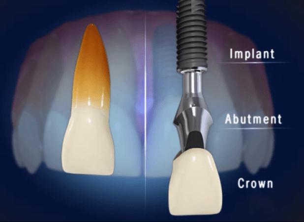 nhung-dieu-can-luu-y-khi-cay-ghep-implant-2