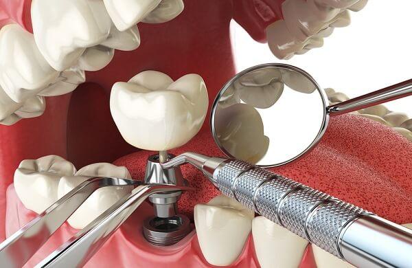 Trồng răng vĩnh viễn bằng phương pháp cắm ghép implant