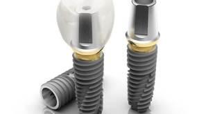 Trồng răng implant ở đâu tốt nhất tại Hà Nội?