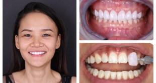 Có mấy loại răng sứ trên thị trường Hiện Nay