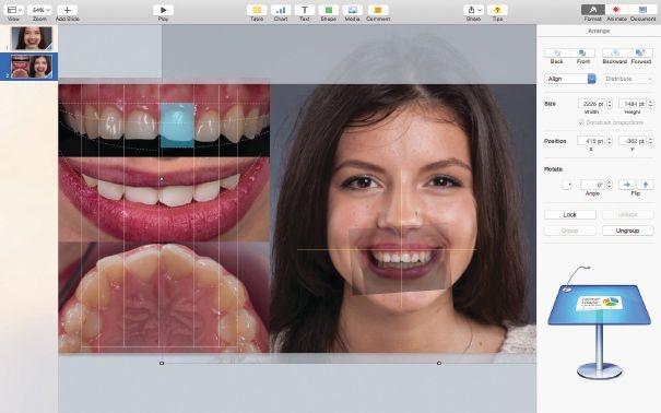 a9r4468 - NHẦM TƯỞNG VÀ THỰC TẾ VỀ DIGITAL SMILE DESIGN
