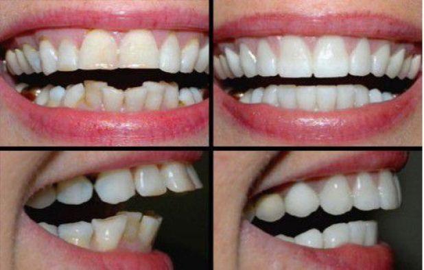 Bọc răng sứ có hết hô không?