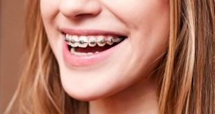 Niềng răng sinh viên hỗ trợ trả góp 0% chỉ 10 triệu/2 hàm mắc cài kim loại 3M