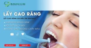 Địa chỉ cạo vôi răng uy tín ở đâu tại Hà Nội?