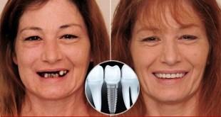 Cắm implant răng cửa bằng sứ gì và có nguy hiểm không?