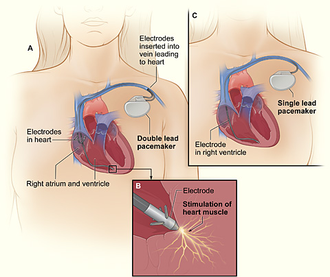 Pacemakers | National Heart, Lung, and Blood Institute (NHLBI)