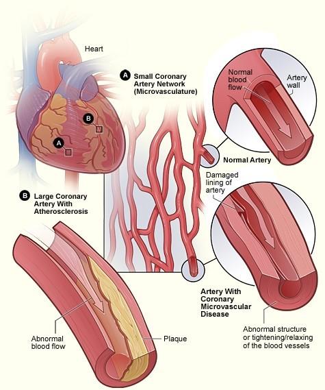 Coronary microvascular disease in small arteries and obstructive coronary artery disease in large arteries