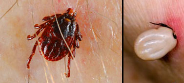 Tick On Skin And Tick Sucking Blood