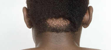 Keloid scars and hypertrophic scars   Go Africa Health