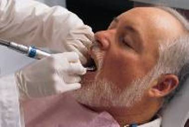 Nhs Direct Wales Encyclopaedia Tooth Decay