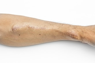 A person's arm showing an AV fistula.