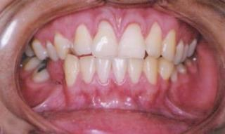 ortodontia a distancia 1