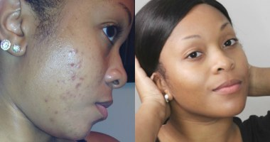 how to remove dark spots