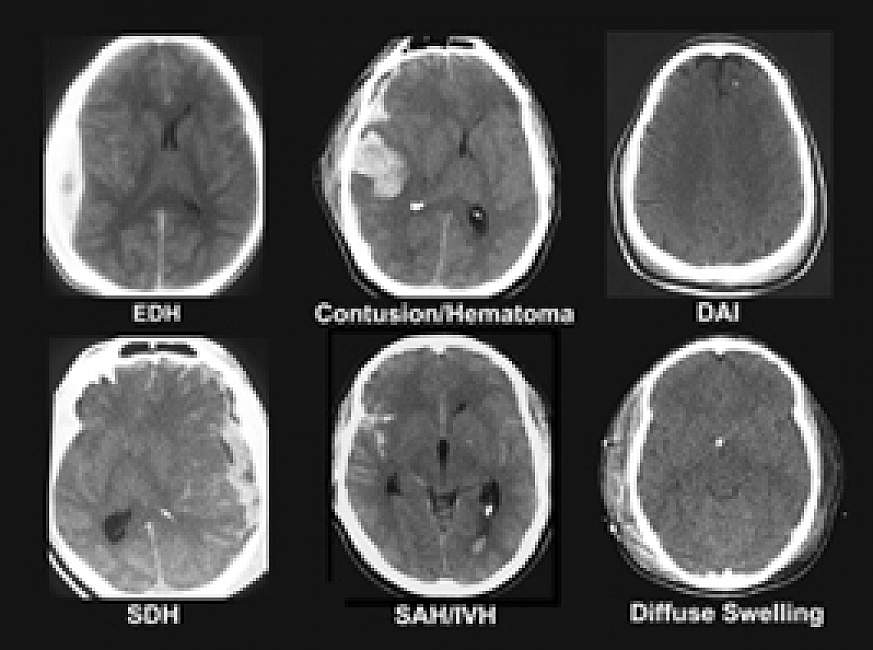 Ct Showing Scan Concussion