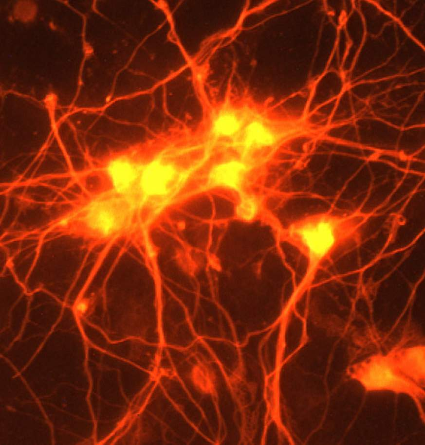 Image of neurons in a dish treated with GDF10