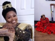 Amputee Lady who used to hawk for survival has been totally transformed in new photos