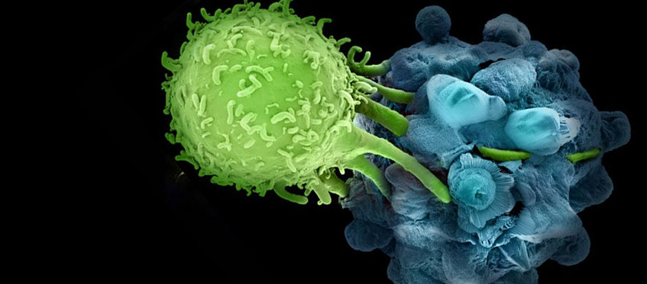 Cancer Immunotherapy Proves Itself in Earlier-Stage Disease