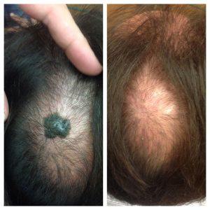 ninofavoriti-laserchirurgia-dermatologica-02