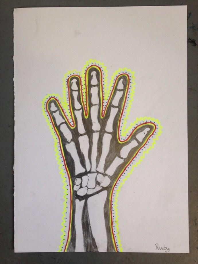 HAND_XRAY_07