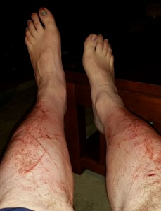 My Bloody Legs after Close Encounters with Saw Palmettos