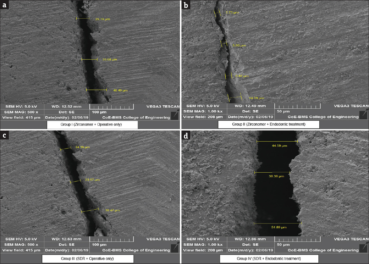 Comparative Evaluation Of Fracture Toughness And Marginal