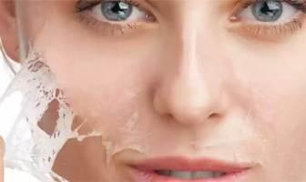 Glikolik Asit Peeling